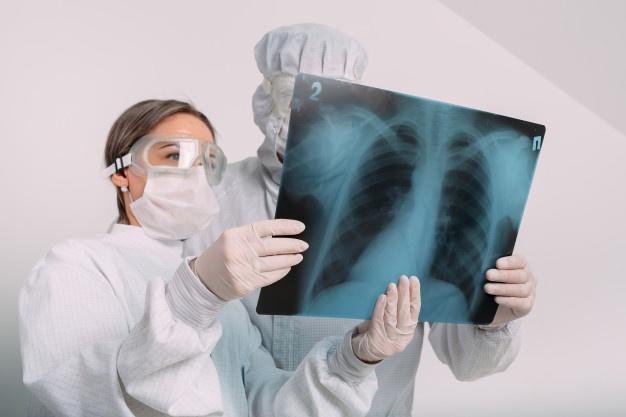 Пацієнтам з підозрою на Covid-19 безкоштовно робитимуть рентген і КТ